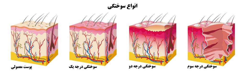 انواع زخم سوختگی
