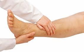 تشخیص زخم وریدی