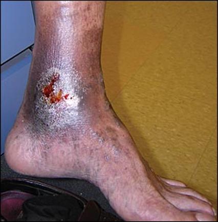 زخم های وریدی