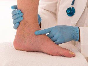 درمان زخم وریدی